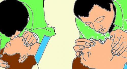 Respirazione artificiale: come praticare la respirazione bocca a bocca e liberare le vie aeree